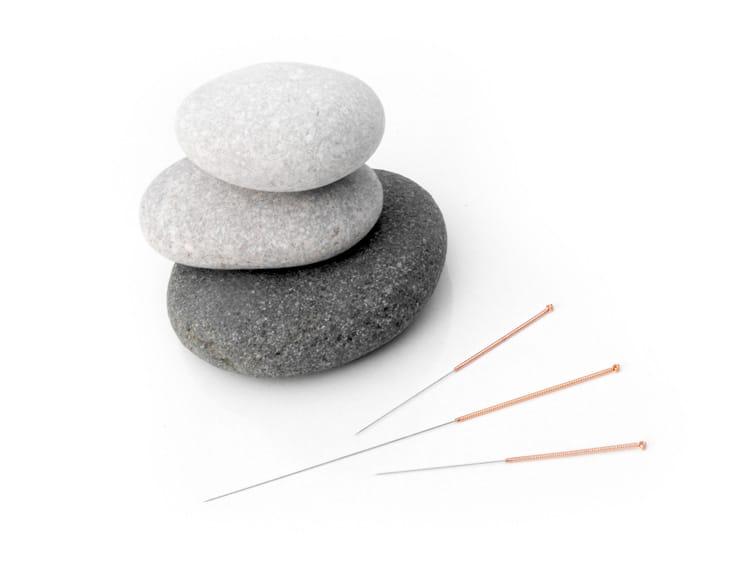Praxis für Akupunktur in Lübeck – Akupunkturnadeln